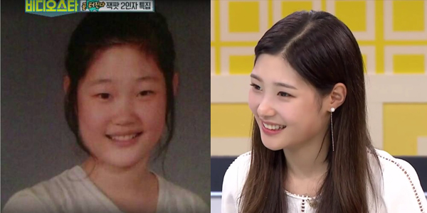 jung-chae-yeon_plastic surgery